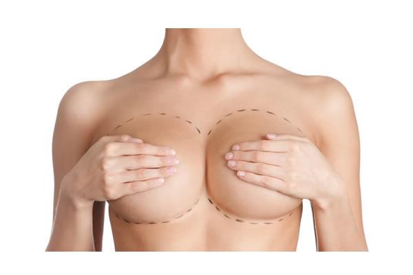 Mamoplastia redutora - Anne Groth